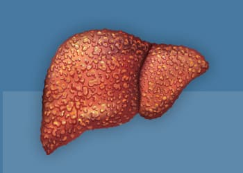 Liver with Hepatitis