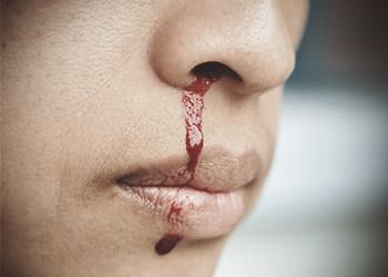 drugabuse_shutterstock-299312624-nose-bleed-from-drug-and-alcohol-abuse
